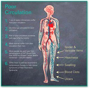 poorcirculation